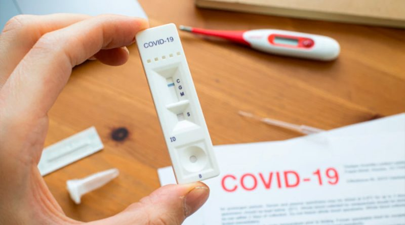 Un estudio revela que los casos leves de covid-19 crean anticuerpos de larga duración