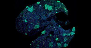Identifican cómo prevenir las metástasis del cáncer