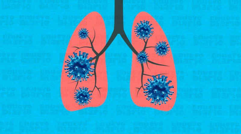 Un modelo a nivel atómico sirve para entender cómo la covid daña los pulmones