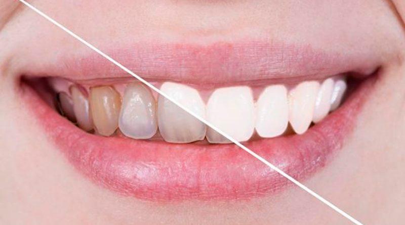 Crean un caramelo que blanquea los dientes y regenera el esmalte