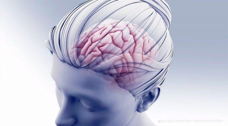 Un dispositivo cerebral implantable alivia el dolor, en un estudio inicial