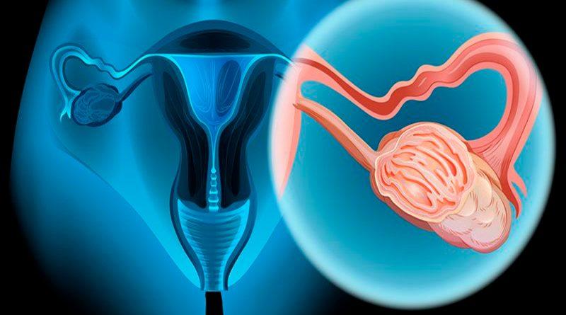 Nuevo órgano en un chip encuentra interacción entre la sangre y los tumores de ovarios