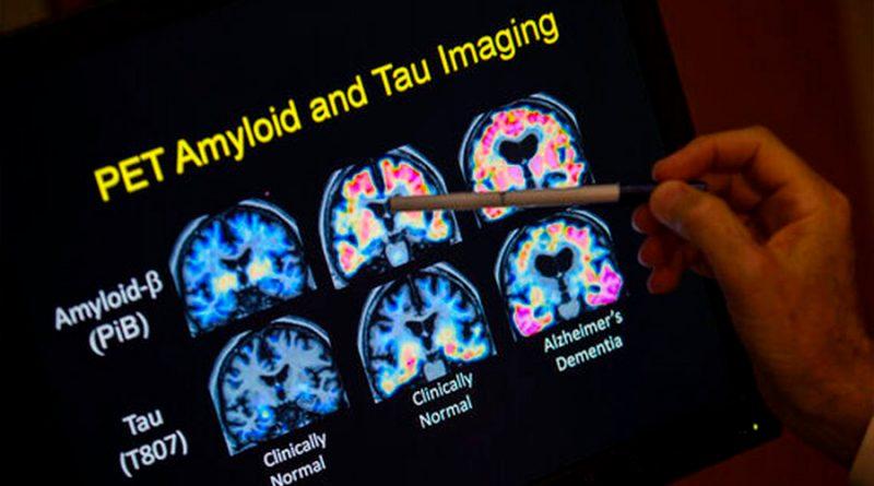 Descubren inesperadamente cobre y hierro en el cerebro de pacientes de Alzheimer