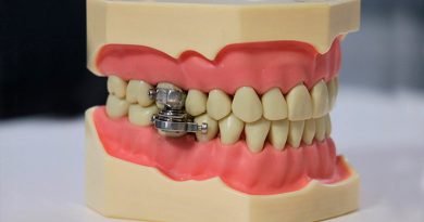 """""""Candado de dientes"""": crean un dispositivo para perder peso que impide abrir la boca"""