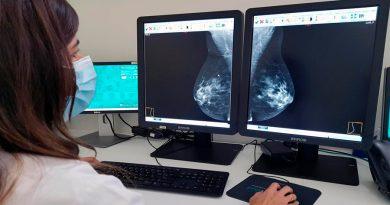 Consiguen resultados prometedores sobre el cáncer de mama agresivo