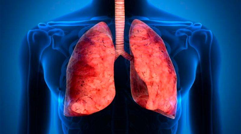 Demuestran la eficacia de una molécula para tratar la fibrosis pulmonar