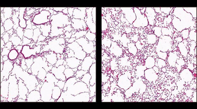 Revierten el enfisema en ratones inyectando células de la pared de los vasos sanguíneos