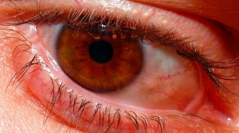 Alumnos mexicanos logran detectar daño ocular gracias a inteligencia artificial