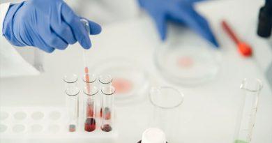 Hallan en Sudáfrica una nueva variante del coronavirus con numerosas mutaciones
