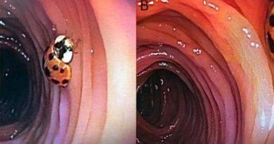 Descubren que un hombre tiene una mariquita viviendo en su intestino