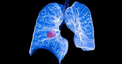 Nueva tecnología de análisis de sangre con IA identifica cánceres de pulmón con gran precisión