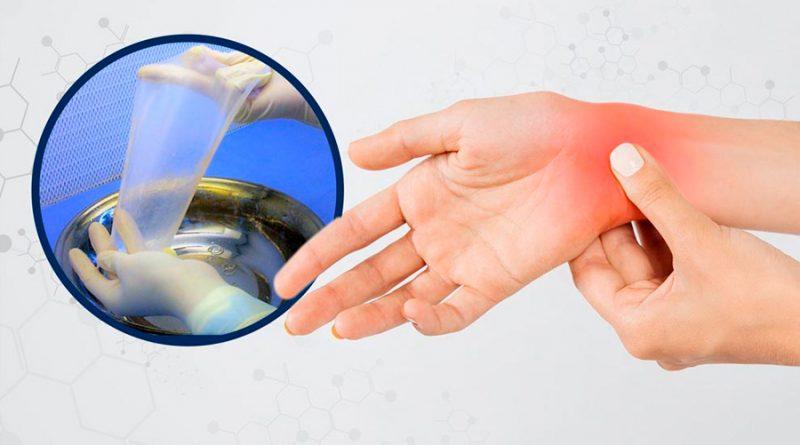 En la UNAM reaprovechan membrana amniótica para tratar problemas en nervios de la mano