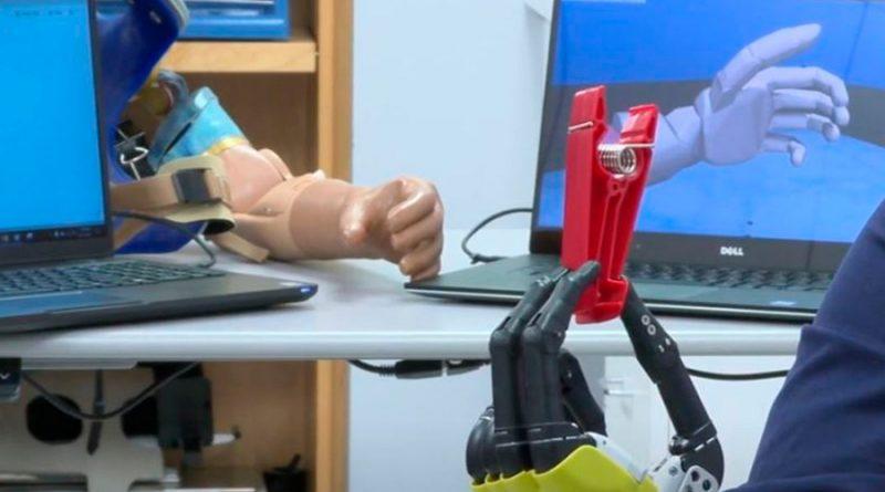 Científicos desarrollan brazo biónico que permite a amputados sentir objetos