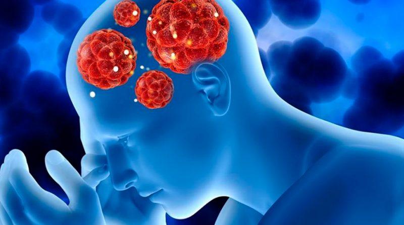 El implante de cerebro por epilepsia no cambia la personalidad de los pacientes