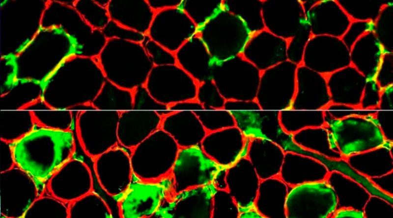 Un estudio revela que las células inmunitarias cooperan para atrapar y matar bacterias