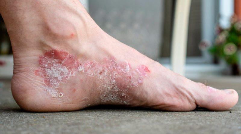 Descubren una célula de la piel que contribuye a enfermedades como la dermatitis atópica y la psoriaris