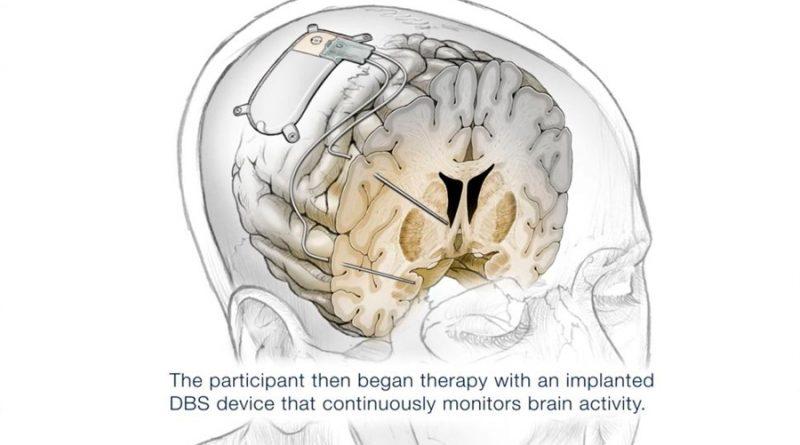Mujer recibe primer implante cerebral para curar la depresión