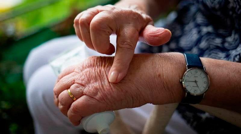 Científicos norteamericanos desarrollan potente vacuna contra la artritis de forma accidental