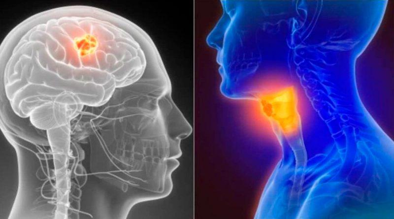 Nuevo tratamiento destruye tumores del cáncer de cabeza y cuello, según estudio