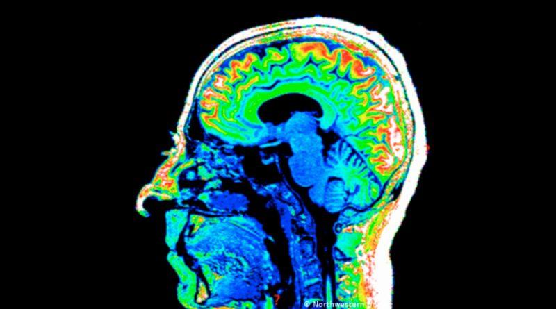 Científicos hallan proteína que determina si los recuerdos pueden ser modificados